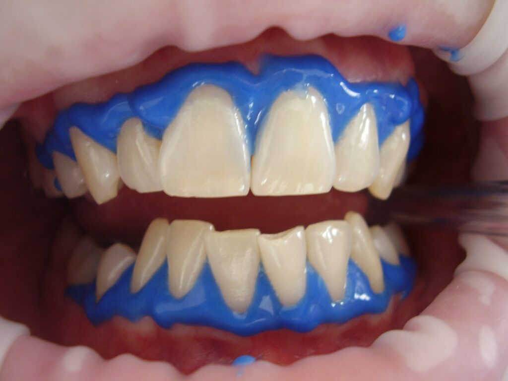 dents blancs