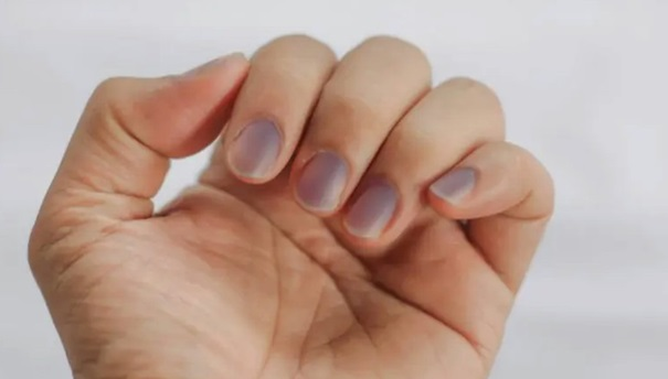 maladie ongle bleu